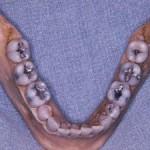 Grace's teeth